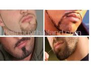beardshap1